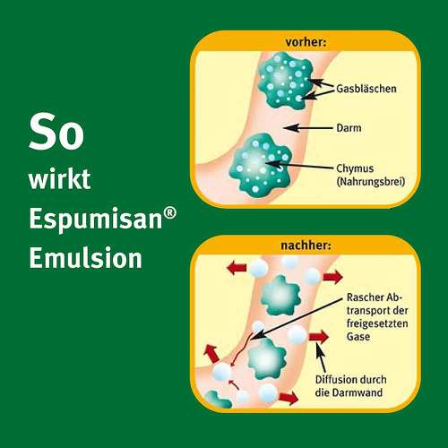 Espumisan Emulsion - 2